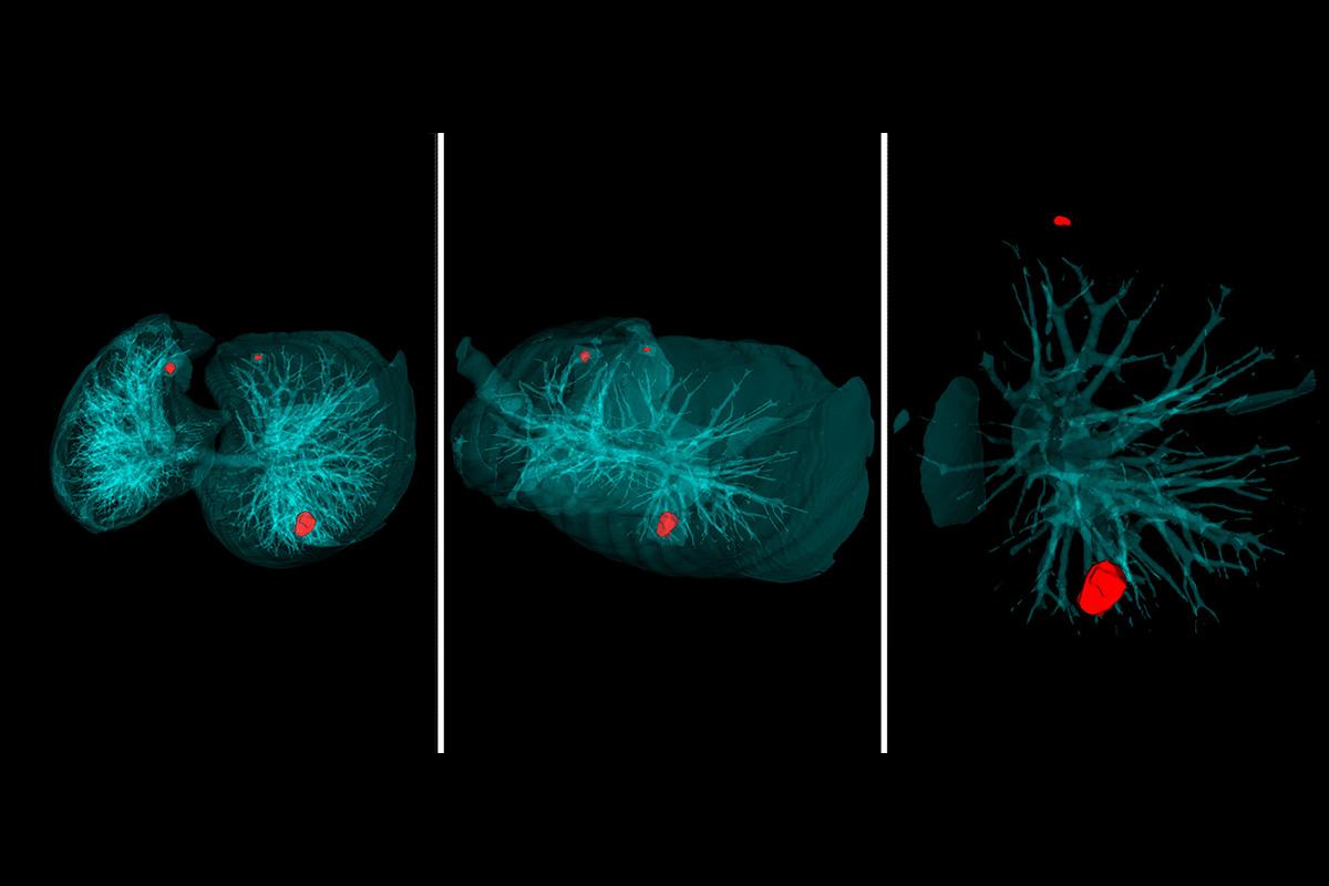 Los científicos de la Polytech han creado un sistema inteligente para detectar el cáncer de pulmón